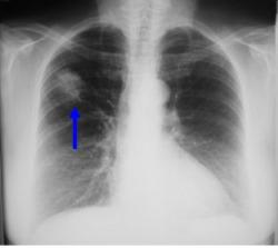 Figure 7: An abnormal Chest X-Ray showing a cancer in the patient's right lung (blue arrow) (doctors.net.uk)